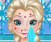 Elsa-Squeeze-Pimples